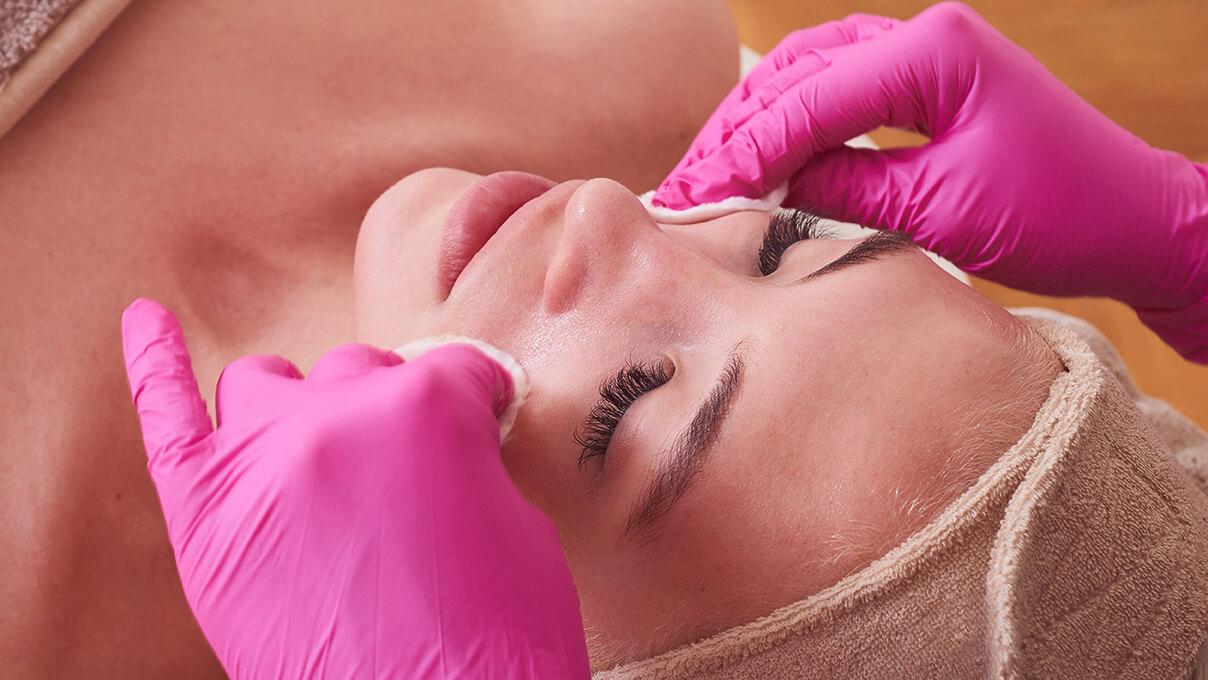 FYMC-léčba-akné-chemický-peeling